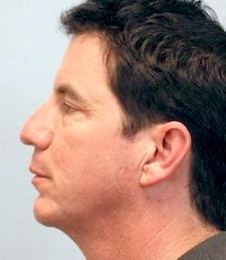 After Results for Chin Implant