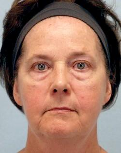 Before Results for Blepharoplasty, Facelift, Laser Skin Resurfacing, Fat Transfer, Necklift