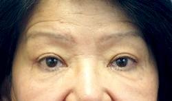 After Results for Blepharoplasty