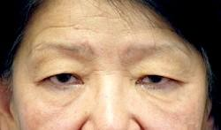 Before Results for Blepharoplasty