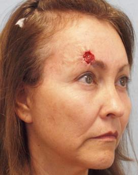 Before Results for Mohs Surgery Reconstruction, Skin Cancer Reconstruction