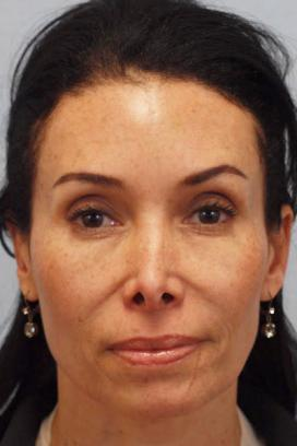 Before Results for Juvederm, Lip Augmentation