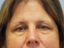 Before Results for Blepharoplasty, Laser Skin Resurfacing, Fat Transfer