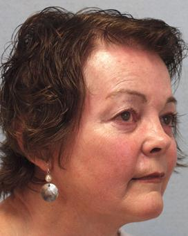 After Results for Mohs Surgery Reconstruction, Skin Cancer Reconstruction