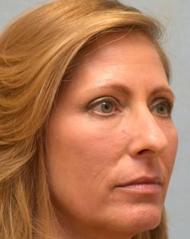 After Results for Blepharoplasty, Laser Skin Resurfacing, Fat Transfer