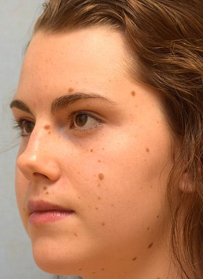 Before Results for Mole Removal