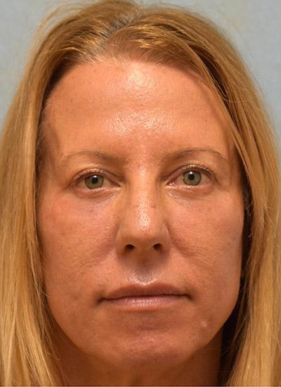 After Results for Blepharoplasty, Laser Skin Resurfacing, Fat Transfer
