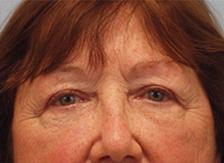After Results for Blepharoplasty, Fat Transfer