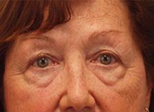 Before Results for Blepharoplasty, Fat Transfer