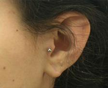 After Results for Earlobe Repair