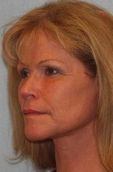 After Results for Blepharoplasty, Facelift, Fat Transfer, Necklift