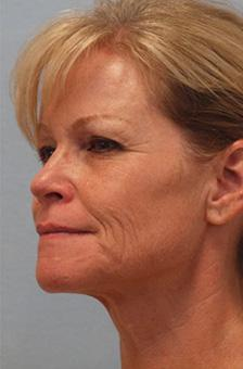 Before Results for Blepharoplasty, Facelift, Fat Transfer, Necklift