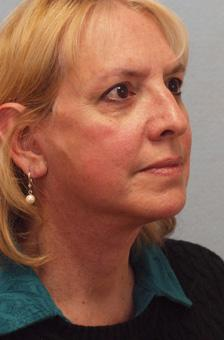 After Results for Facelift, Necklift