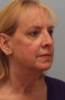 Before Results for Facelift, Necklift