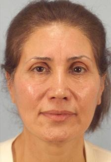 After Results for Facelift