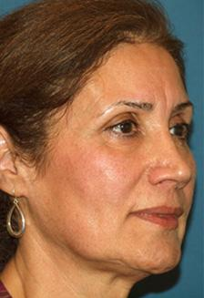Before Results for Facelift