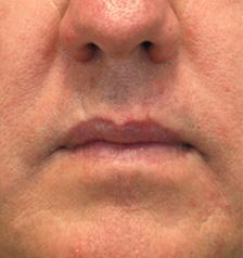 After Results for Facial Trauma