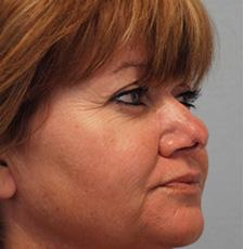 After Results for Mohs Surgery Reconstruction, Skin Cancer Reconstruction, Nose Reconstruction