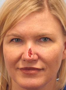 Before Results for Mohs Surgery Reconstruction, Skin Cancer Reconstruction, Nose Reconstruction