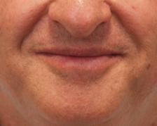 After Results for Mole Removal