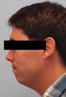 Before Results for Chin Implant