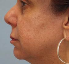 Before Results for Blepharoplasty, Laser Skin Resurfacing, Fat Transfer