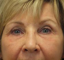 After Results for Laser Skin Resurfacing