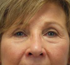 Before Results for Laser Skin Resurfacing