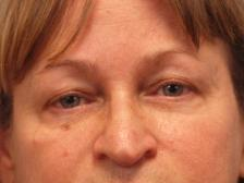 After Results for Botox, Restylane