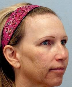 Before Results for Botox, Juvederm, Laser Skin Resurfacing, Restylane