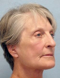 After Results for Facelift, Laser Skin Resurfacing, Fat Transfer, Necklift
