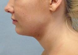 After Results for Neck Liposuction
