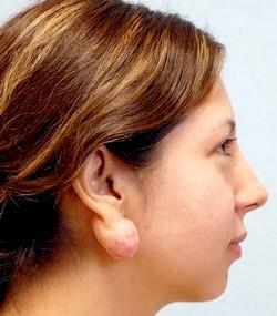 Before Results for Earlobe Repair, Keloid Removal, Scar Revision