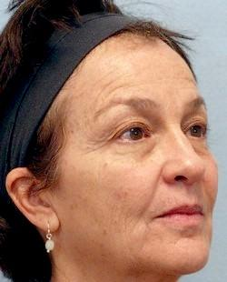 Before Results for Blepharoplasty, Juvederm, Laser Skin Resurfacing, Fat Transfer