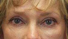 After Results for Blepharoplasty, Fat Transfer
