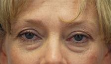 Before Results for Blepharoplasty, Fat Transfer