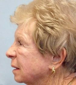 After Results for Laser Skin Resurfacing