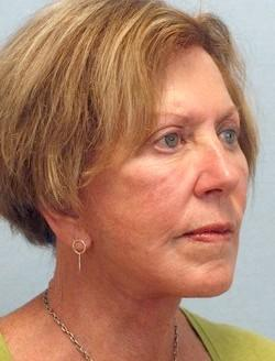 After Results for Facelift, Fat Transfer, Necklift
