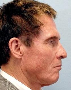 Before Results for Facelift, Fat Transfer, Necklift